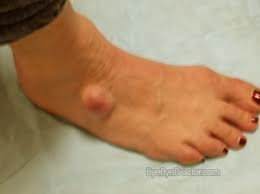 Pictures of ganglion cyst on top of foot