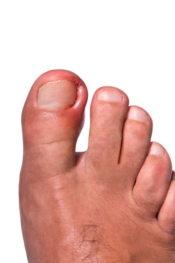 Ingrown toenail permanent correction surgery in Boise & Meridian Idaho